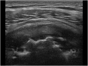 Ultraääni ei läpäise luuta, mutta luun pinta nähdään selvästi. Kuvassa reuman aiheuttamia muutoksia (eroosiota) olkaluussa. (kuva Ultrasoundcases.info:n luvalla)