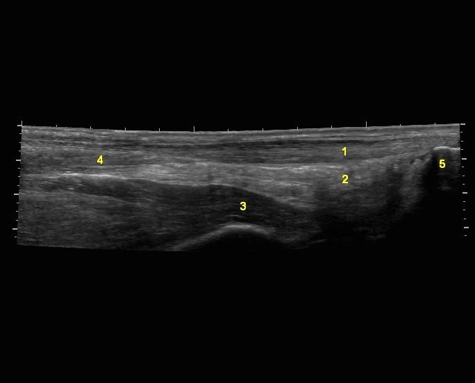 Akilles panoraama • Sonografia – Tuki- ja liikuntaelimistön ultraäänikuvaus