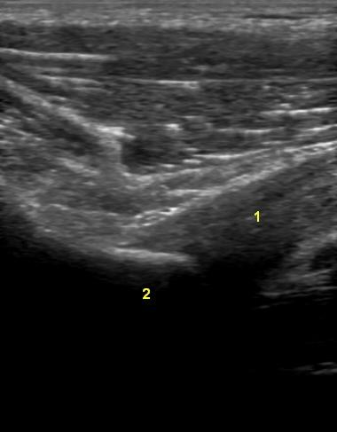 Q epäsuora pää1 • Sonografia – Tuki- ja liikuntaelimistön ultraäänikuvaus