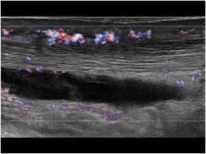 uscases akilles peritendiniiitti • Sonografia – Tuki- ja liikuntaelimistön ultraäänikuvaus