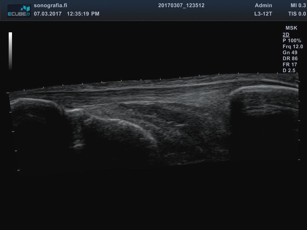 Extended view • Sonografia – Tuki- ja liikuntaelimistön ultraäänikuvaus