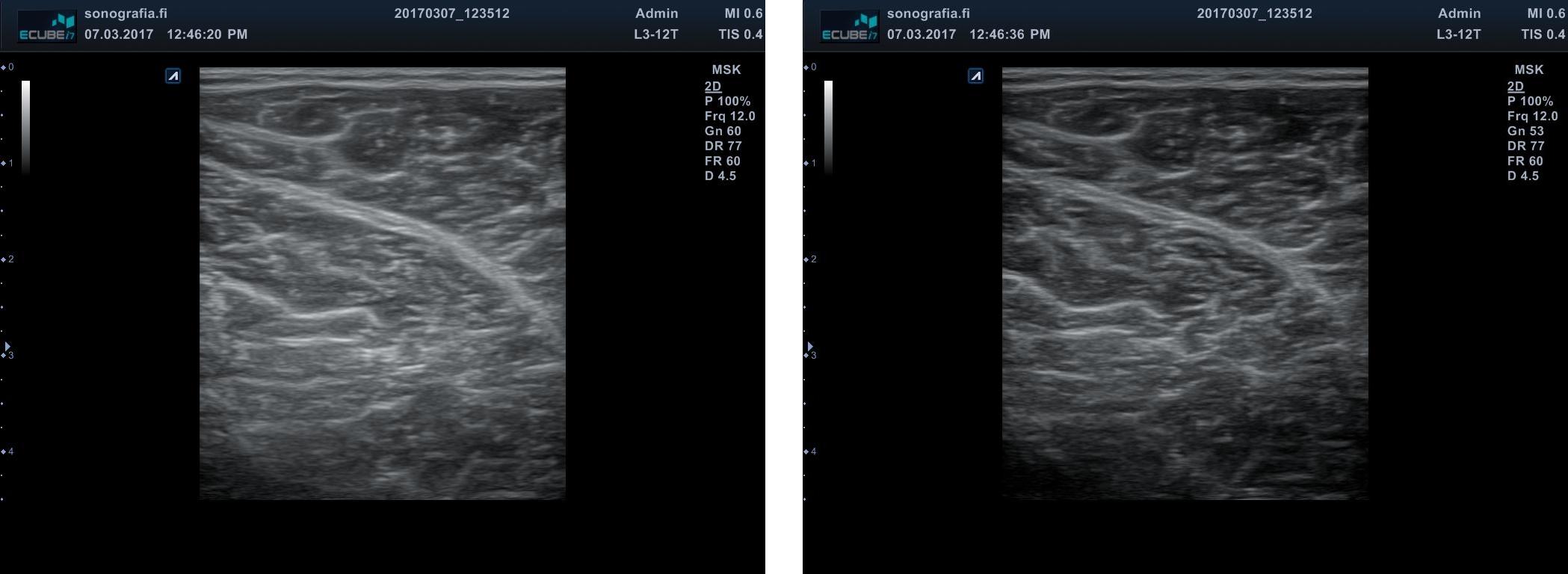 Gain yhdistelmä • Sonografia – Tuki- ja liikuntaelimistön ultraäänikuvaus