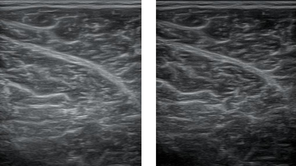 Gain1rajattu yhdistelmä • Sonografia – Tuki- ja liikuntaelimistön ultraäänikuvaus