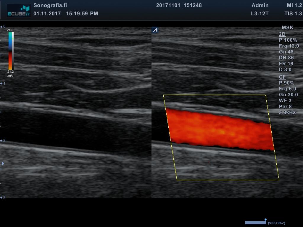 Kuva verisuoni • Sonografia – Tuki- ja liikuntaelimistön ultraäänikuvaus