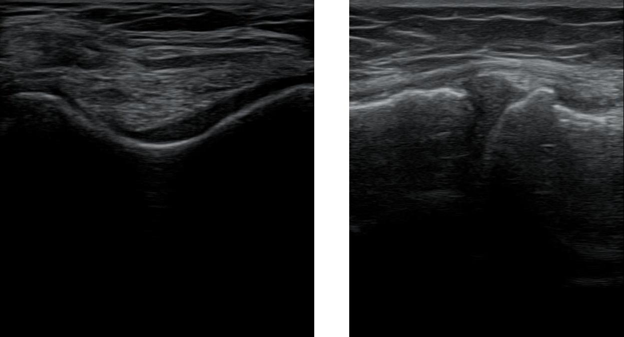 Polven kuluma yhdistetty • Sonografia – Tuki- ja liikuntaelimistön ultraäänikuvaus