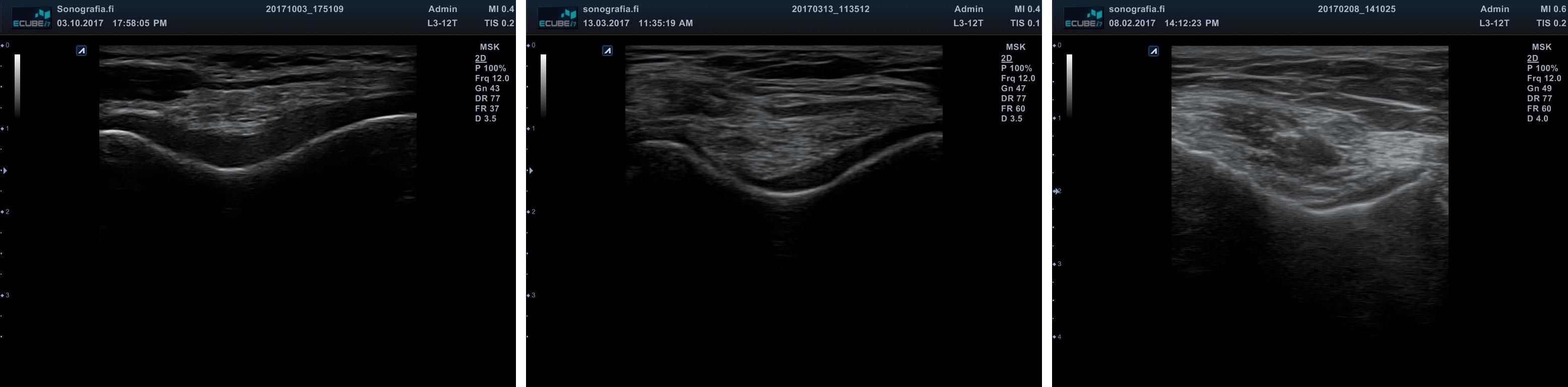 Polven rusto yhdistelmä • Sonografia – Tuki- ja liikuntaelimistön ultraäänikuvaus